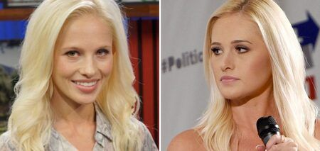 Tomi Lahren before and after the alleged plastic surgery.