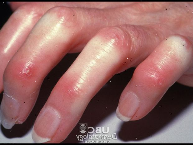 Esclerodermia e a Doença Celíaca