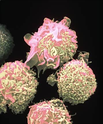 Linfoma cutâneo de células T e Doença Celíaca