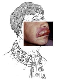 Les macroméilites