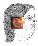 Le syndrome de Goldenhar