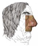 Le rhinophyma