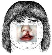 La fente labiale