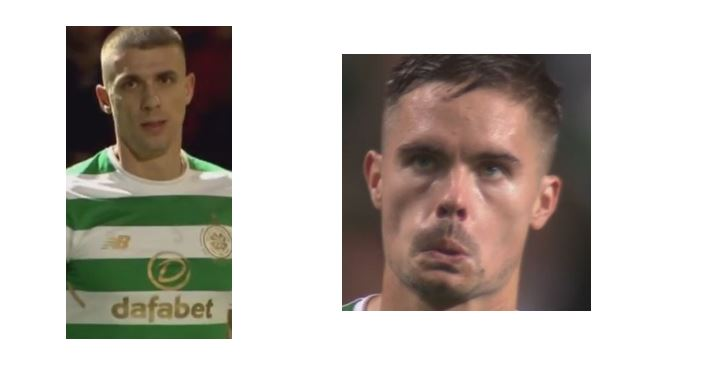 Can Lustig and Simunovic be Defended?
