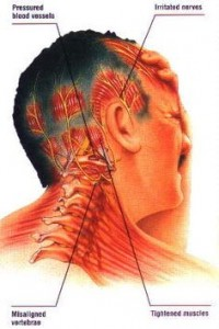 How to heal your headache?