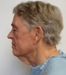 Dr. Stephen Hopping Neck Lift Before Photo