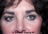 Dr. Stephen Hopping Eyelid Surgery After Photo