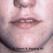 Dr. Stephen Hopping Lip Enhancement Before Photo