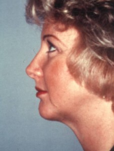 NeckLift with Chin Implant After Photo