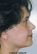 Dr. Stephen Hopping Facelift After Photo
