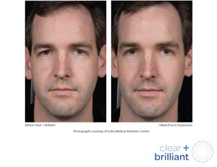 Dr. Stephen Hopping Clear and Brilliant Before and After Photo