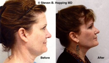 Thermage, Washington DC, Plastic Surgery, Steven Hopping, MD