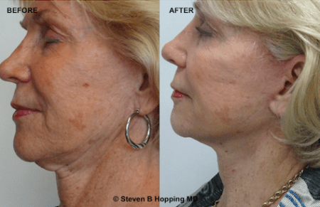 Laser Sfacelift before after photo