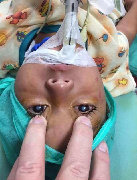 Young child receiving eye surgery