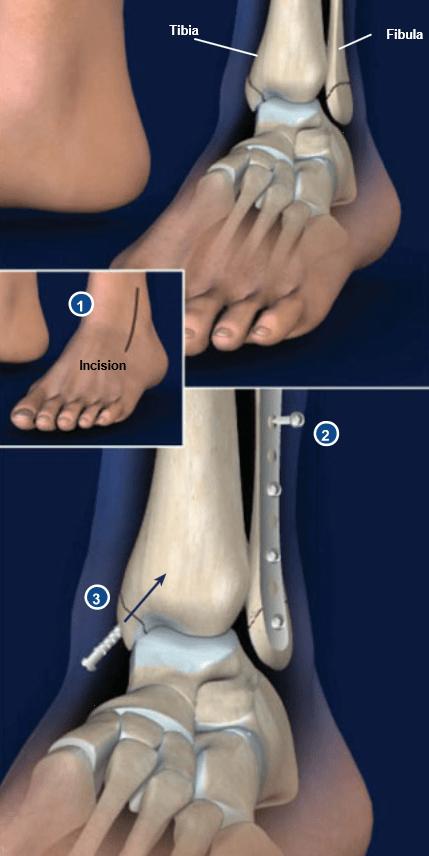 Cirugía de Fracturas de Tobillo