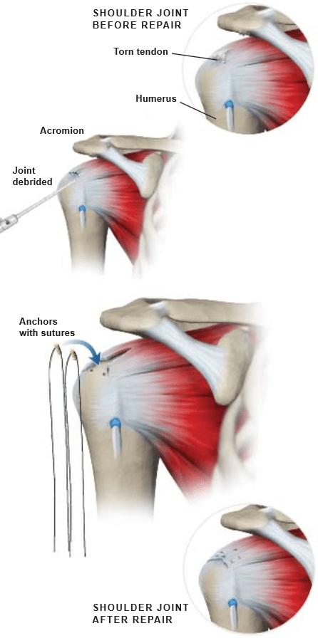 Artroscópico-Rotador-Manguito-Reparación