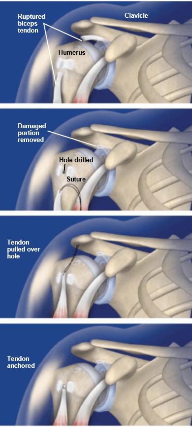 Bíceps-tenodesis