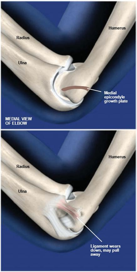 MedialApophysitis