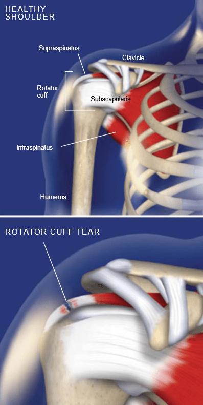 Rotator-Cuff-Tears
