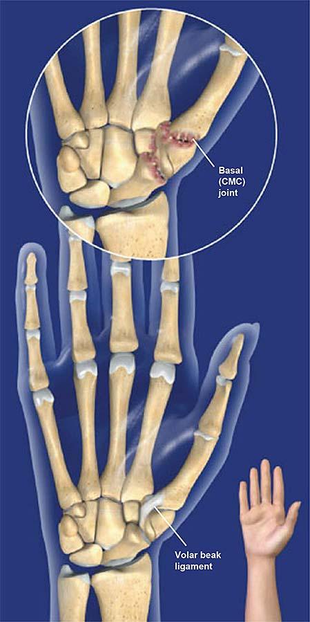 basal-joint-osteoarthritis