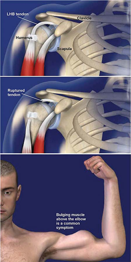 biceps-tendon-rupture