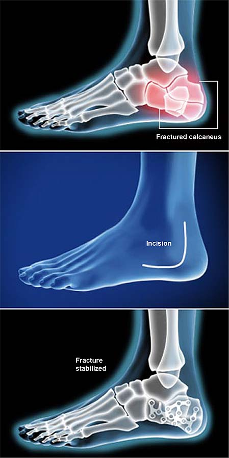 calcaneal-fracture-fixation-open-reduction-and-internal-fixation