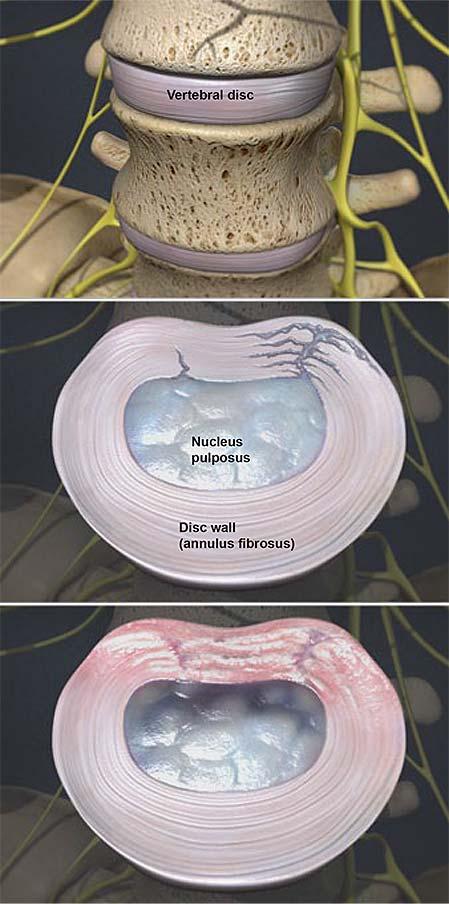 degenerative-disc-disease