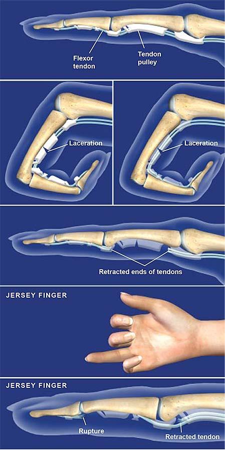 vasos sanguíneos rotos en pie y tobillo
