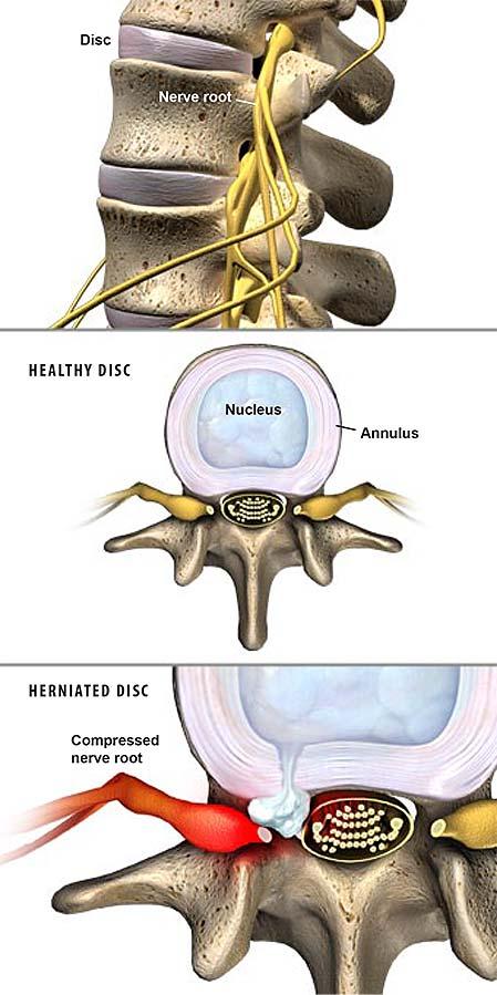 -hernias discales