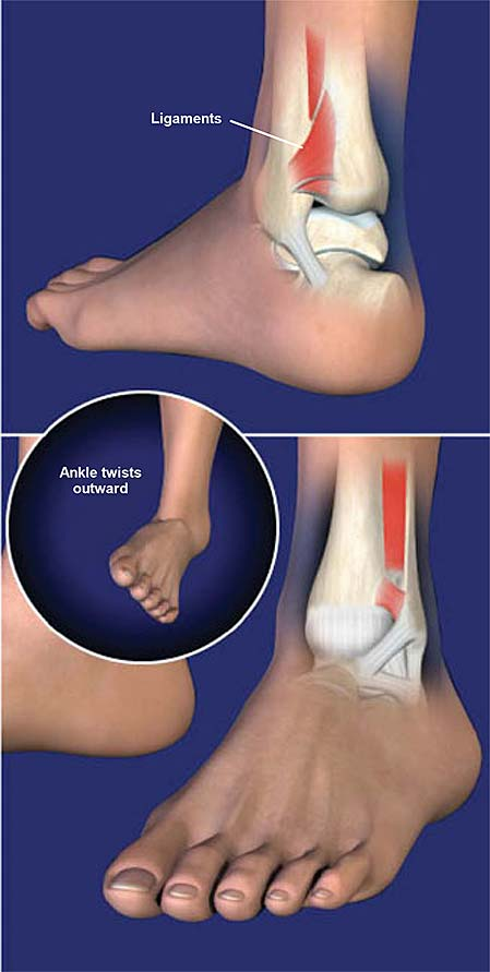 high-ankle-sprain-syndesmosis-ligament-injury