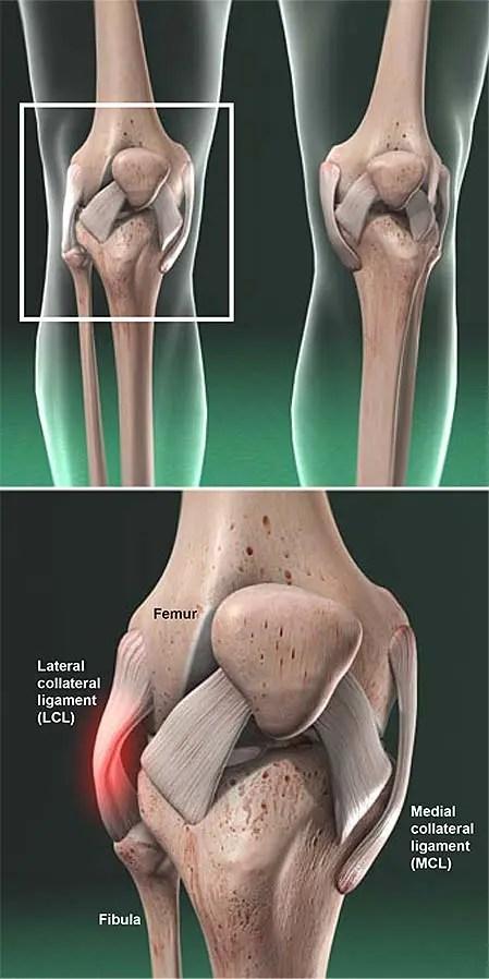 Lesión lateral-colateral-ligamento-lcl