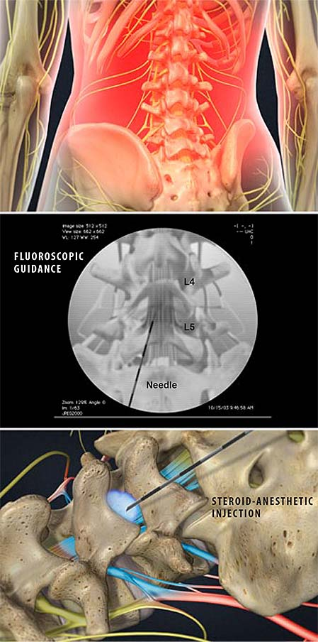 lumbar-epidural-steroid-injection