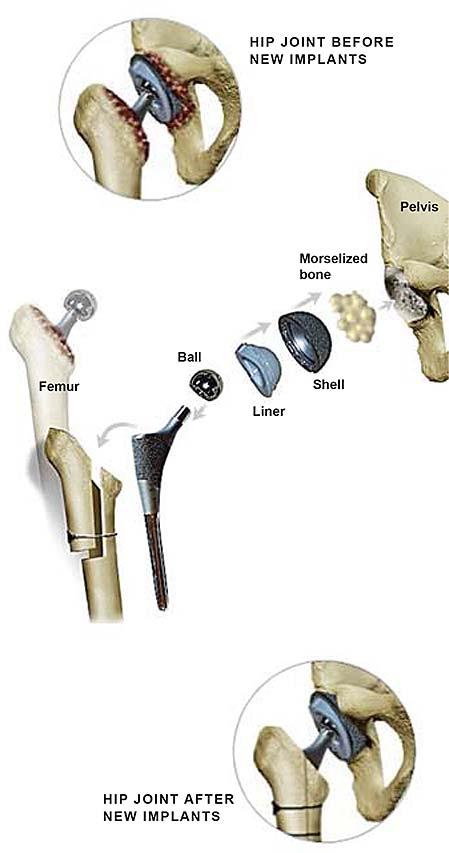 revision-hip-surgery