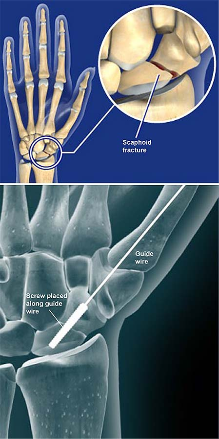scaphoid-fracture-open-reduction-and-internal-fixation-orif