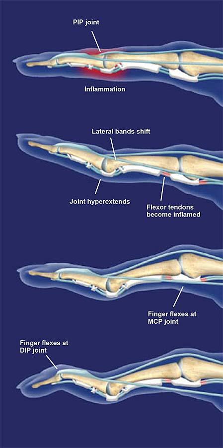 swan-neck-deformity-2