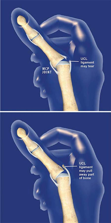 thumb-ulnar-collateral-ligament-ucl-injury