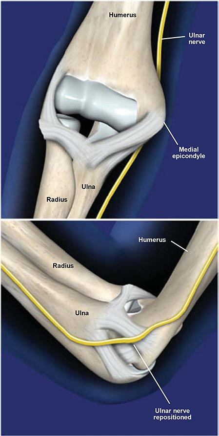 Ulnar Nerve Transposition at the Elbow
