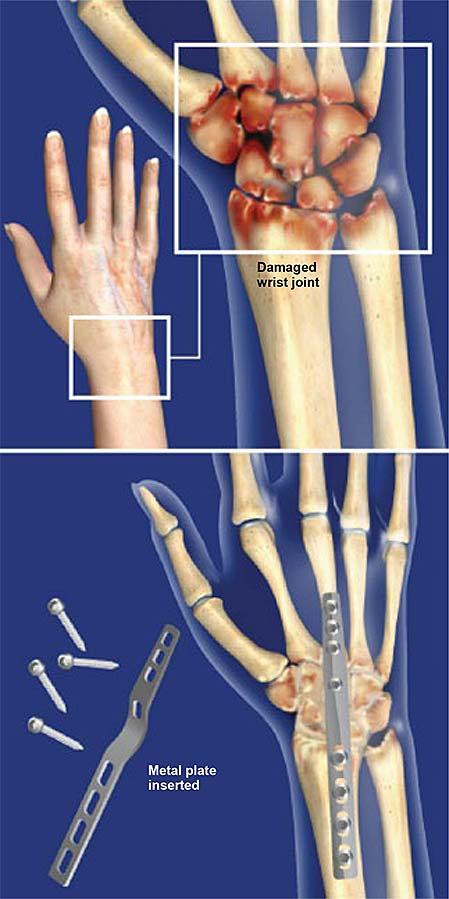 Muñeca-fusión-total-muñeca-artrodesis