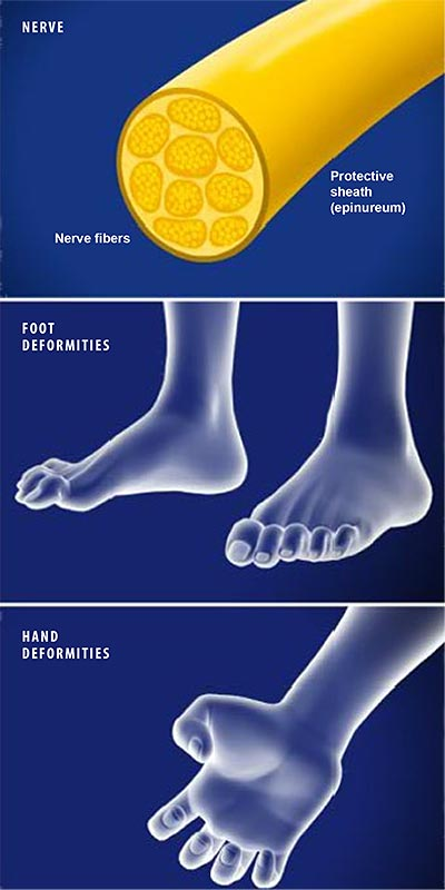 Charcot-Marie-Tooth-Disease-(CMT)