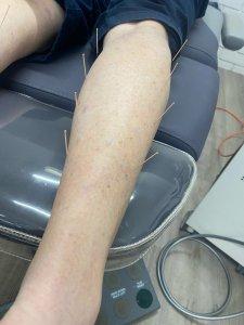 Skin Needling Morisset
