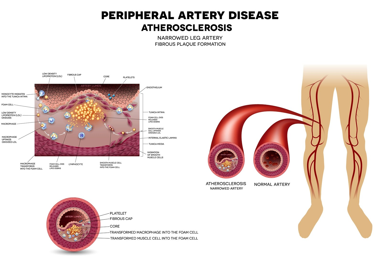 What Is Peripheral Artery Disease Pad