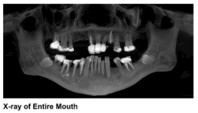 X-Ray of the entire mouth