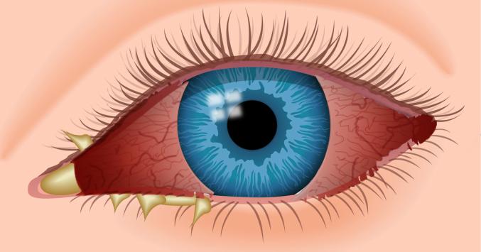 La conjonctivite infectieuse - SOS Oeil