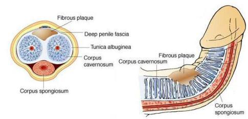 choroba peyroniego obrazy