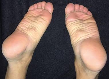twardy guzek na stopie