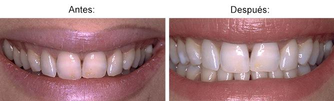 formacion-estetica-dental-blanqueamiento-5