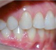 ortodoncia-alineadores-invisibles-5