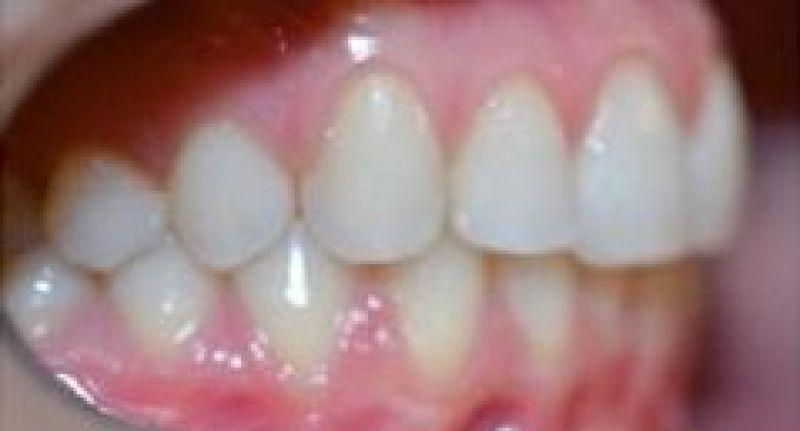 ortodoncia-alineadores-invisibles