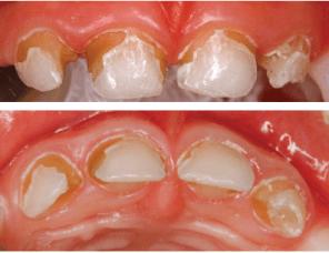 curso-estetica-dental