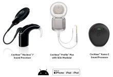 Photo of Cochlear obtains FDA approval of Kanso 2 Sound Processor, first off-the-ear cochlear implant sound processor with direct smartphone connectivity